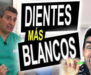 DIENTES BLANCOS ✔️ Quitar manchas y tener los dientes más blancos sin peligro (Consejos dentista)