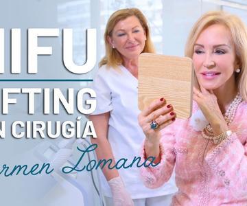 HIFU Facial: el Lifting SIN Cirugía de Carmen Lomana [Testimonio]