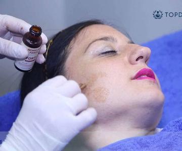 Manchas en la piel: causas y tratamientos