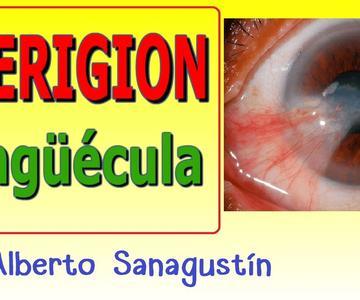 PTERIGION y PINGUÉCULA ocular