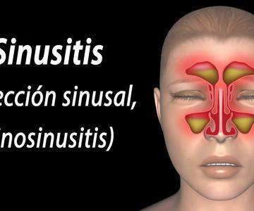 Sinusitis, Animación. Alila Medical Media Español.